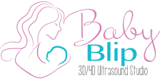 logo Baby Blip 3D - 3D 4D Ultrasound in Miami, Oklahoma