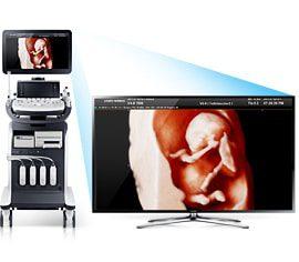 img_WS80A_05 Samsung UGEO WS80a - Premium HD Ultrasound Machine